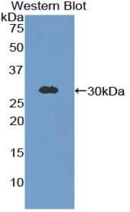 Polyclonal Antibody to Gastric Intrinsic Factor (GIF)