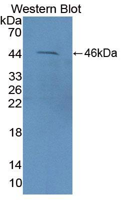Polyclonal Antibody to Fasciculation And Elongation Protein Zeta 2 (FEz2)