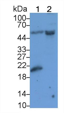 Polyclonal Antibody to Sjogren Syndrome Antigen B (SSB)