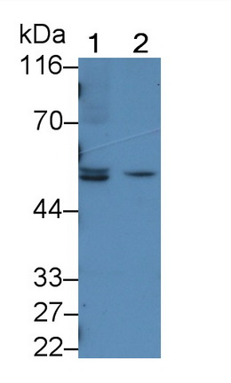 Polyclonal Antibody to Sjogren Syndrome Antigen A1 (SSA1)