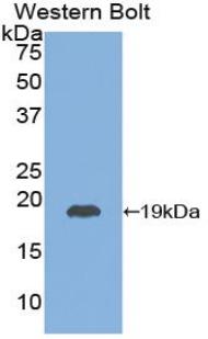 Polyclonal Antibody to Thyroid Stimulating Hormone Beta (TSHb)