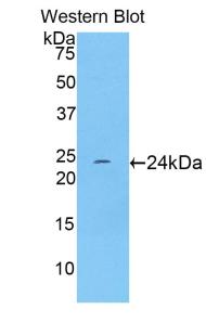 Polyclonal Antibody to Troponin I Type 1, Slow Skeletal (TNNI1)