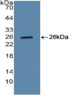 Polyclonal Antibody to Cyclin B (CCNB)
