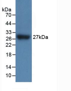 Polyclonal Antibody to Interleukin 17 Receptor C (IL17RC)