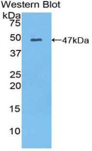 Polyclonal Antibody to Myosin Light Chain 6B, Alkali, Smooth Muscle And Non Muscle (MYL6B)