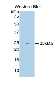 Polyclonal Antibody to Hypoxia Inducible Factor 2 Alpha (HIF2a)