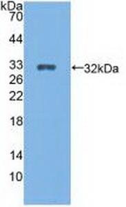 Polyclonal Antibody to Cytochrome P450 27B1 (CYP27B1)