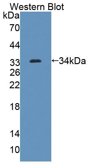 Polyclonal Antibody to ATP Binding Cassette Transporter G8 (ABCG8)
