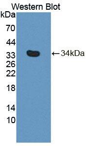 Polyclonal Antibody to Phospholipase C Delta 4 (PLCd4)