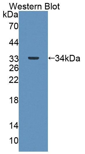 Polyclonal Antibody to 4-Aminobutyrate Aminotransferase (ABAT)