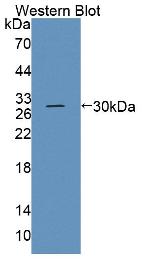 Polyclonal Antibody to Branched Chain Aminotransferase 1, Cytosolic (BCAT1)