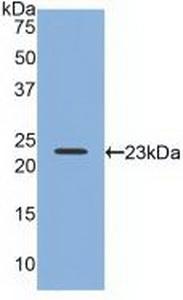Polyclonal Antibody to Relaxin 2 (RLN2)