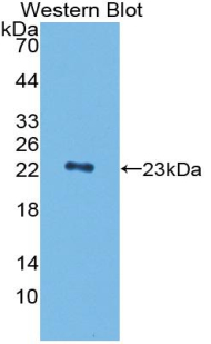 Polyclonal Antibody to Peptidoglycan Recognition Protein 1 (PGLYRP1)