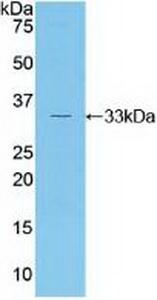 Polyclonal Antibody to RAR Related Orphan Receptor Gamma (RORg)