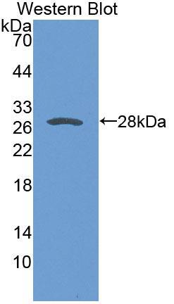 Polyclonal Antibody to Sarcoglycan Delta (SGCd)