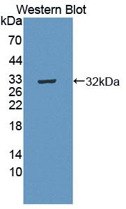 Polyclonal Antibody to C-Mer Proto Oncogene Tyrosine Kinase (MERTK)