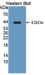 Polyclonal Antibody to Solute Carrier Family 39, Member 6 (SLC39A6)