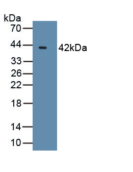 Polyclonal Antibody to B-Cell CLL/Lymphoma 7A (Bcl7A)