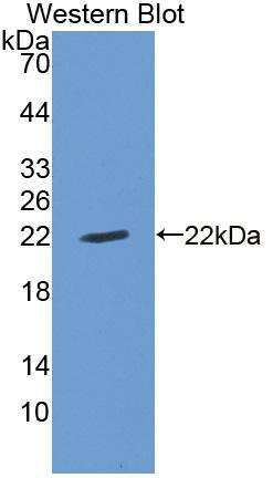 Polyclonal Antibody to Cyclin Dependent Kinase Inhibitor 1A (CDKN1A)