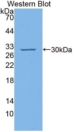 Polyclonal Antibody to Cyclin Dependent Kinase Inhibitor 1B (CDKN1B)