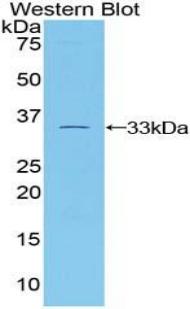 Polyclonal Antibody to Tubulin Beta 1 (TUBb1)