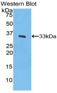 Polyclonal Antibody to Interleukin 20 Receptor Beta (IL20Rb)