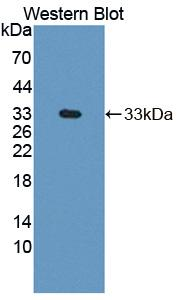 Polyclonal Antibody to Diacylglycerol Kinase Zeta (DGKz)