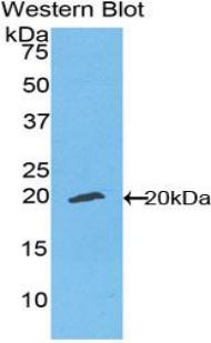 Polyclonal Antibody to Ectonucleotide Pyrophosphatase/Phosphodiesterase 1 (ENPP1)