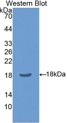 Polyclonal Antibody to Chloride Intracellular Channel Protein 4 (CLIC4)