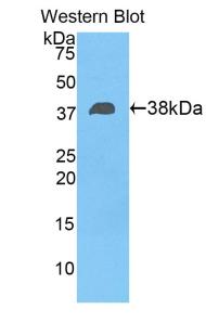Polyclonal Antibody to Fibulin 4 (FBLN4)