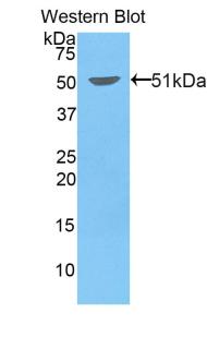 Polyclonal Antibody to Kinesin Family, Member 5A (KIF5A)