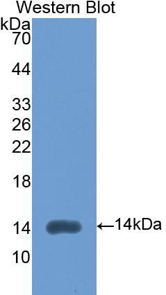 FITC-Linked Polyclonal Antibody to Lysyl Oxidase Like Protein 2 (LOXL2)