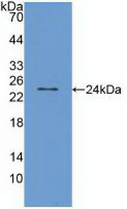 Polyclonal Antibody to Transient Receptor Potential Cation Channel Subfamily V, Member 1 (TRPV1)
