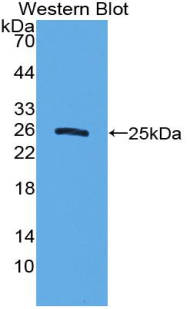 Polyclonal Antibody to Sclerostin Domain Containing Protein 1 (SOSTDC1)