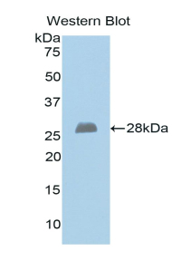 Polyclonal Antibody to Exostoses 1 (EXT1)