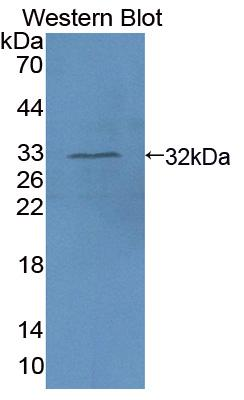 Polyclonal Antibody to Absent In Melanoma 1 (AIM1)