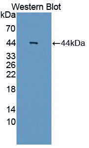 Polyclonal Antibody to Absent In Melanoma 2 (AIM2)