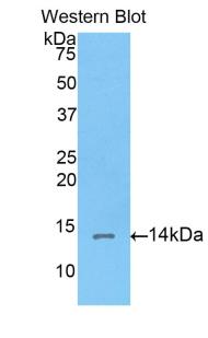 Polyclonal Antibody to Corin (CRN)