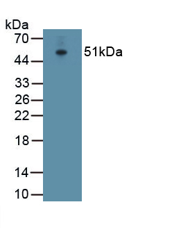 Polyclonal Antibody to ATPase, Na+/K+ Transporting Alpha 1 Polypeptide (ATP1a1)