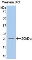 Polyclonal Antibody to Galactosylceramidase (GALC)