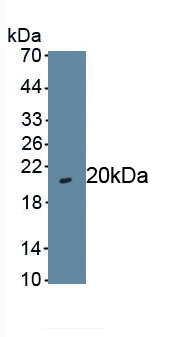 Polyclonal Antibody to GA Binding Protein Transcription Factor Alpha (GABPa)