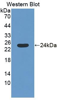Polyclonal Antibody to Spermidine/Spermine N1-Acetyltransferase 1 (SAT1)