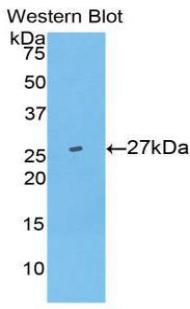 Polyclonal Antibody to Ubiquitin Carboxyl Terminal Hydrolase L5 (UCHL5)