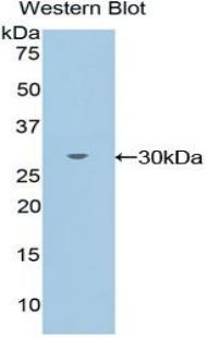 Polyclonal Antibody to TXK Tyrosine Kinase (TXK)