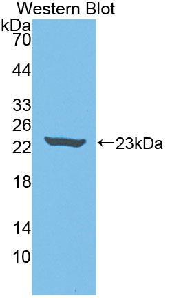 Polyclonal Antibody to Neuropathy Target Esterase (NTE)