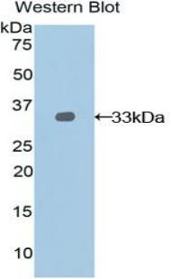 Polyclonal Antibody to Nexilin (NEXN)