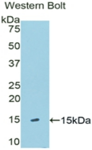 Polyclonal Antibody to Klotho Beta (KLb)