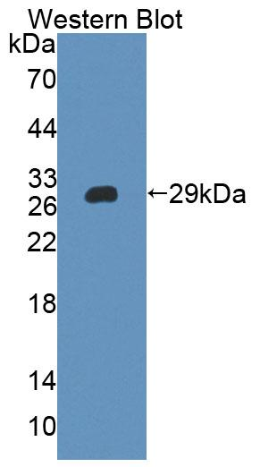 Polyclonal Antibody to Inter Alpha-Globulin Inhibitor H4 (ITIH4)