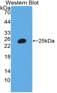 Polyclonal Antibody to Inter Alpha-Globulin Inhibitor H3 (ITIH3)
