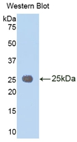 Polyclonal Antibody to Interleukin 1 Receptor Accessory Protein (IL1RAP)